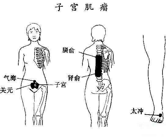 子宫肌瘤是子宫平滑肌细胞增生而引起的子宫良性肿瘤。表现为月经过多和继发贫血,但不少患者可无明显自觉症状。肌瘤因其生长的部位和瘤体的大小,可出现小腹疼痛或坠痛,受孕后流产机会增多;压   迫膀胱和直肠,引起尿潴留和便秘。    (一)刮痧   1、有效经穴:任脉:关元、气海 肝经:太冲 膀胱经:膈俞、肾俞 经外哿穴:f官   2、经穴释义;关元为任脉与足三阴之交会穴,与气海共有通调冲任,疏理气血之效,是为要穴;膈俞为八会穴之血会,重在活血化瘀;肾俞补肾益气;子宫为经外奇穴,为治肌瘤之经验穴;^冲疏肝理气
