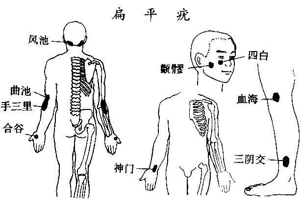 治疗刮痧扁平疣【图】_中医刮痧_中医养生_健舞荷花视频图片