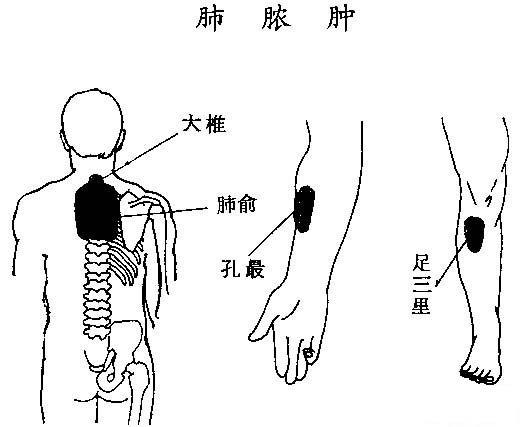 2、经穴释义:大椎是督脉与三阳之会,既能泻热,又是喜肺平喘之要穴;肺俞是肺脏精气输往之处,可统治呼吸系统的疾病;孔最、足三里补气祛痰,止咳平喘。   3、照图刮拭顺序:脊背部前臂掌侧小腿前例   (二)排毒 排除体内毒素,祛除致病之源,服用清肠食品   (三)调理脏腑营养