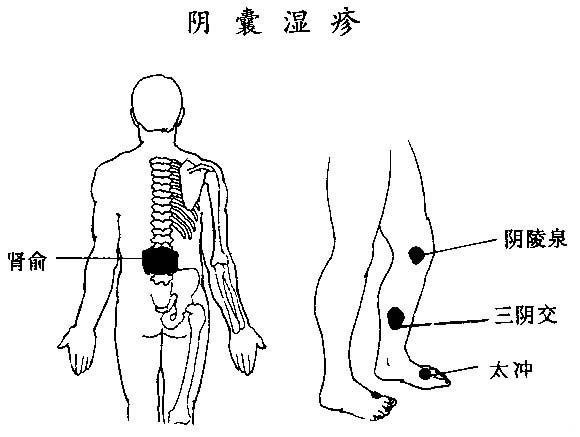 急性发作时,局部皮肤水肿,潮湿或有糜烂,渗出结痴。多数呈慢性,阴囊皮肤皱纹深阔,浸润肥厚,呈橘皮或核桃壳状,干燥,覆有鳞屑,色素加深,间或有部分色素脱失,自觉瘙痒剧烈,病程长,常   数年不愈。    (一)刮痧   1、有效经穴:膀胱经:肾俞 肝经:太冲 脾经:阴睦泉、
