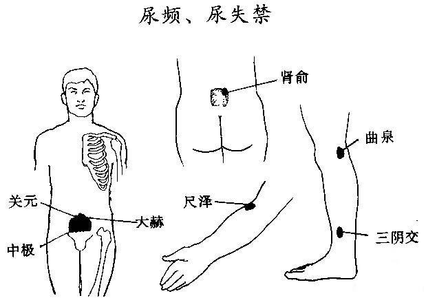 尿失禁主要表现尿液不能自主地排出或不能控制的尿液滴沥或淋沥不尽.